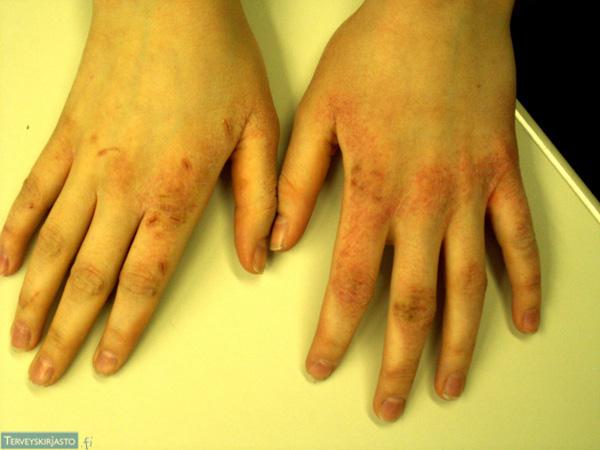 Atooppinen käsi-ihottuma