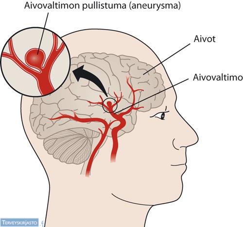 Aivovaltimon pullistuma (aneurysma)