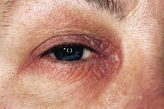 Atooppinen blefariitti
